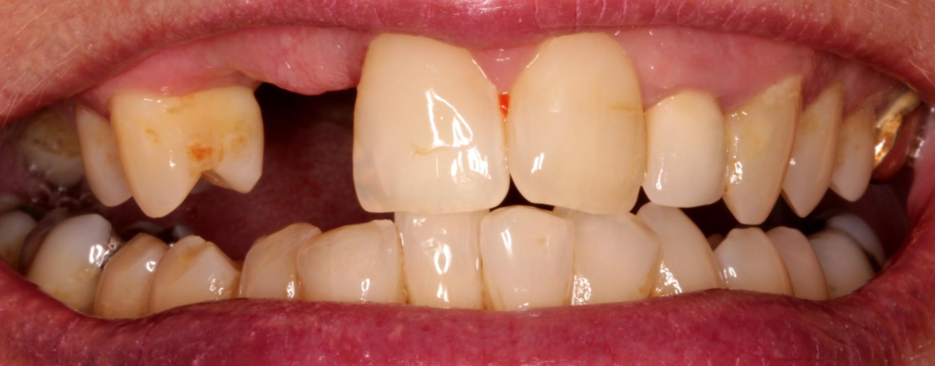 Two Teeth Missing