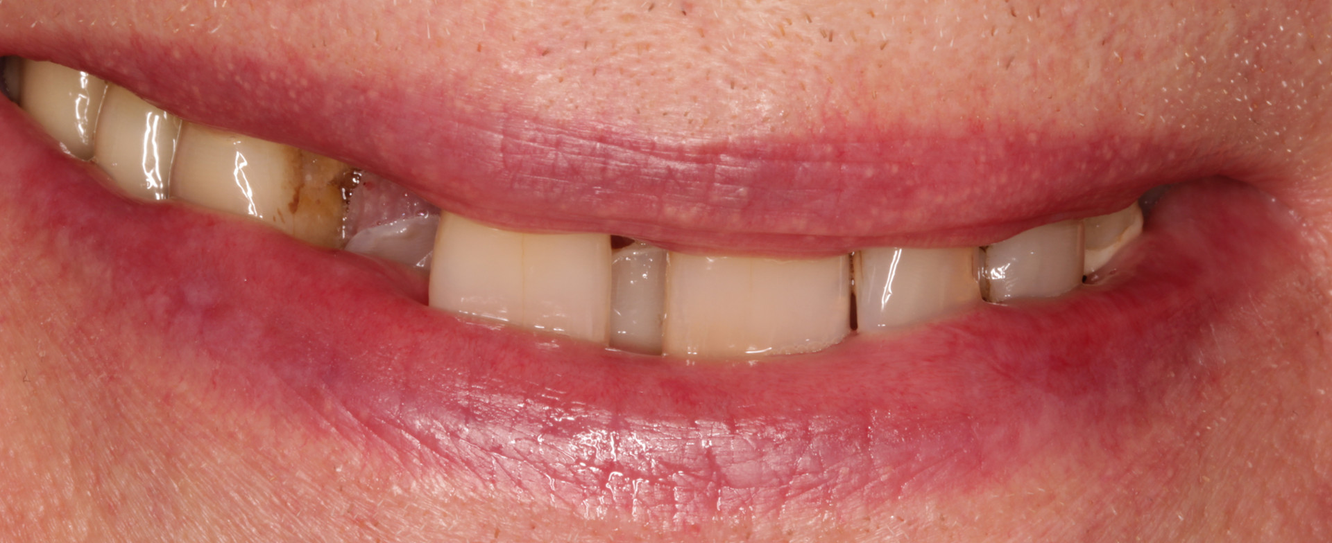 Lateral Incisor Missing
