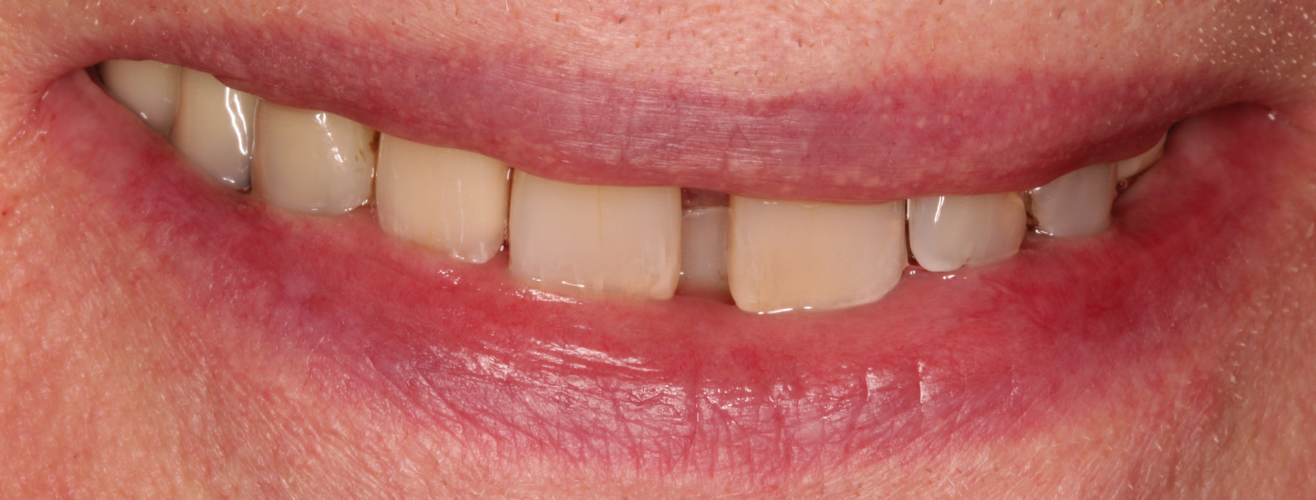 A Seamless Replacement Tooth