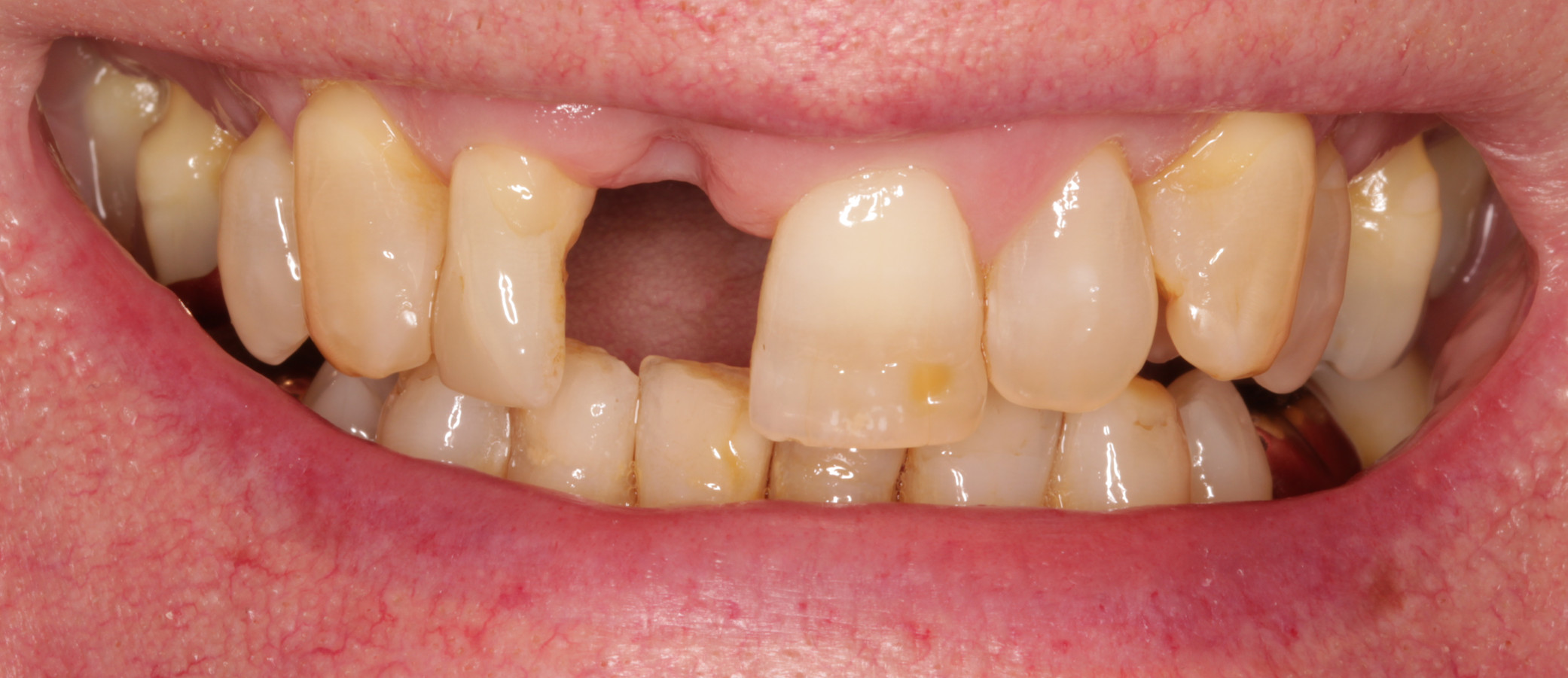 Front Tooth Missing