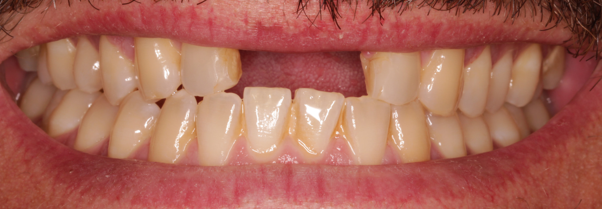 Upper Central Incisors