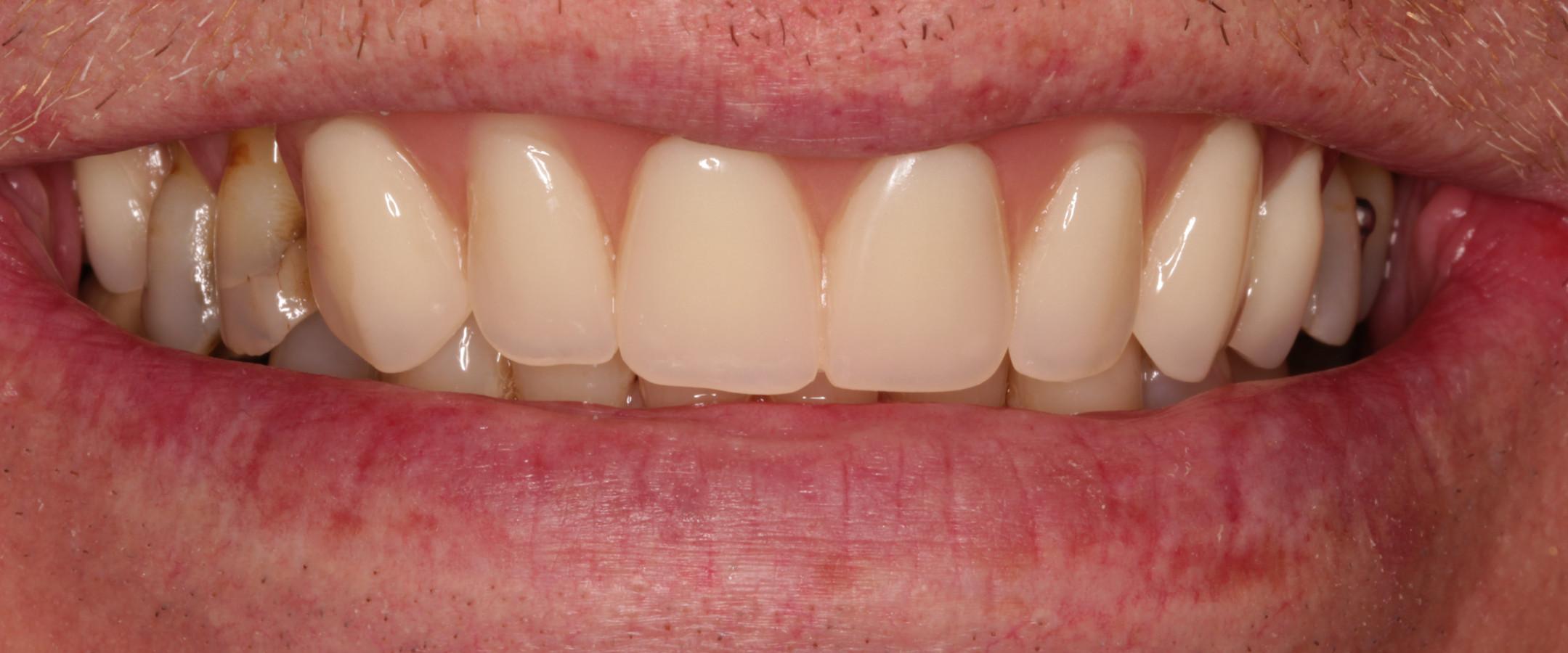 Temporary Denture