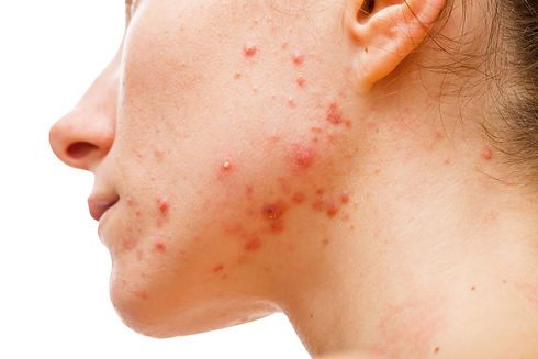Acne skin because the disorders of sebac
