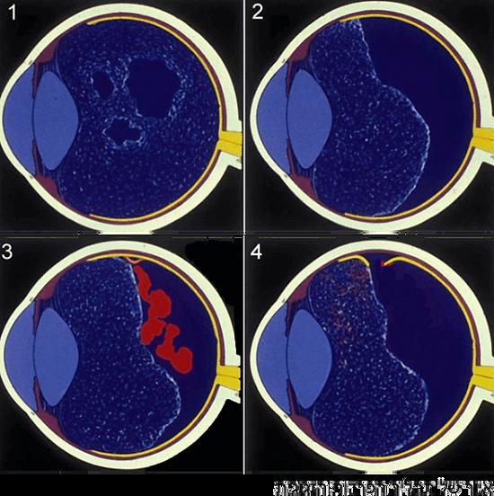 הפרדות זגוגית יכולה לגרום לדימום פנימי בעין וקרע ברשתית