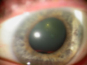 _ATLAS_4_10_cataract_surgery.jpg