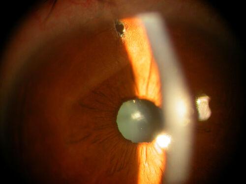 Cataract_Surgery_toric_Intraocular_Lens_