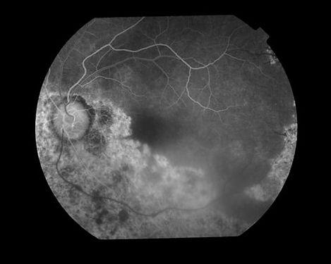 eyemds_Behcet_Retina_Clinic_6.jpg