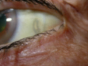 Retina_Cataract_Surgery_ATLAS_4_Senile_s