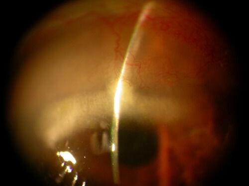 Cornea_degenerations_13.jpg