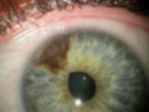 Retina_Cataract_Surgery_ATLAS_4_Iris_nev