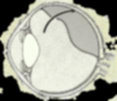 נוזל חדר דרך קרע ברשתית וגרם להפרדות רשתית
