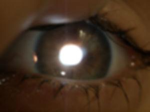 Retina_Cataract_Surgery_ATLAS_7_regional