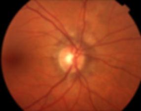 Angioid_retina_1.jpg