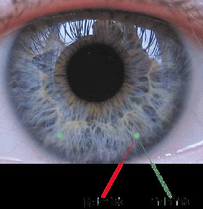 גששים פלורסנטים מאפשרים בדיקת ריכוז חומרים בנוזל הדמעות