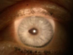Retina_Cataract_Surgery_ATLAS_10_ectropi