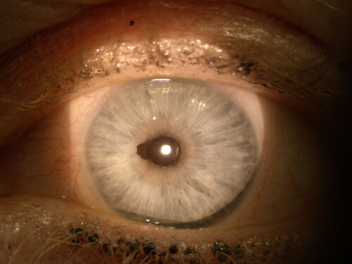 Retina_Cataract_Surgery_ATLAS_10_ectropi