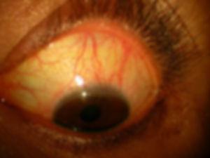 Cornea_non_infectious_keratitis_21.jpg