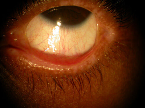 Cataract_Atlas_Pterygium_steven_johnson_