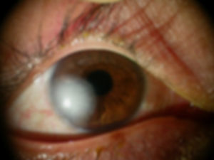 Cornea_degenerations_10.jpg
