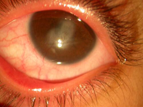Cornea_non_infectious_keratitis_8.jpg