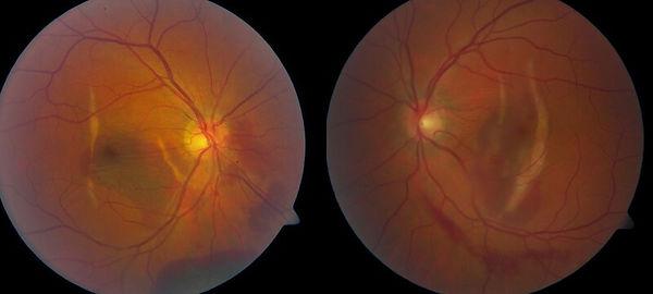 Eye_Injuries_and_trauma_Coroidal_rupture