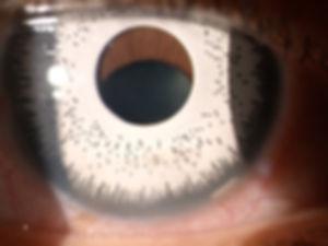 artificial_iris_implant.jpg