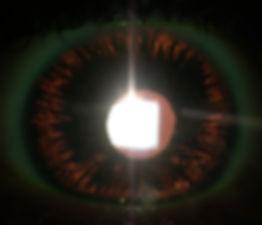 Retina_Cataract_Surgery_ATLAS_12_PDS.jpg