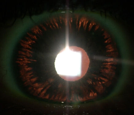 Retina_Cataract_Surgery_ATLAS_12_PDS.jpg