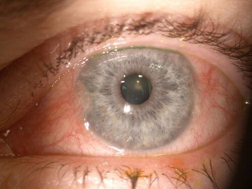 Cataract_Atlas_Pterygium_2.jpg