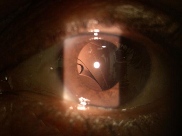 יציאה מהמרכוז של עדשה תוך עינית אחרי ניתוח קטרקט
