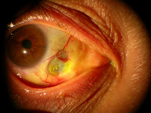 Retina_Cataract_Surgery_ATLAS_5_episcler