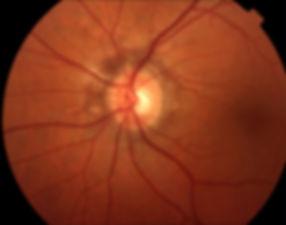 Angioid_retina_2.jpg
