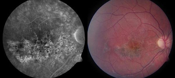 Eye_Injuries_and_trauma_Airbag_injury_to