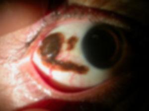 Cataract_Atlas_Pterygium_conjunctival_ne