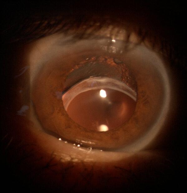 עדשה תוך עינית בסובלוקסציה אחרי ניתוח קטרקט