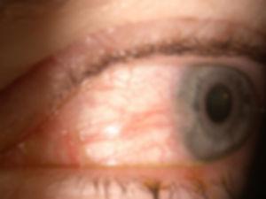 Cataract_Atlas_Pterygium_3.jpg