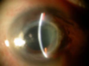 Cornea_non_infectious_keratitis_2.jpg