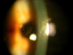 Cornea_degenerations_15.jpg