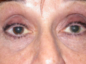 Retina_Cataract_Surgery_ATLAS_2_FHI_4.jp