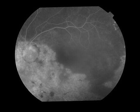 eyemds_Behcet_Retina_Clinic_13.jpg
