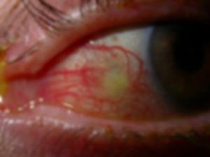 Retina_Cataract_Surgery_ATLAS_5_episcler