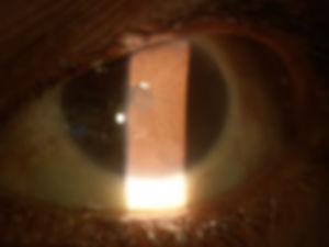 Retina_Cataract_Surgery_ATLAS_8_seclusio