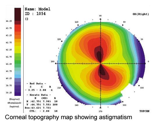 corneal topography - with the rule astigmatism