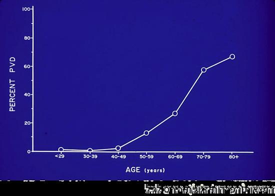 השכיחות של הפרדות זגוגית עלה אחרי גיל 50
