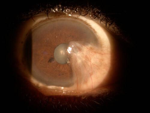 Cataract_Atlas_Pterygium_5.jpg