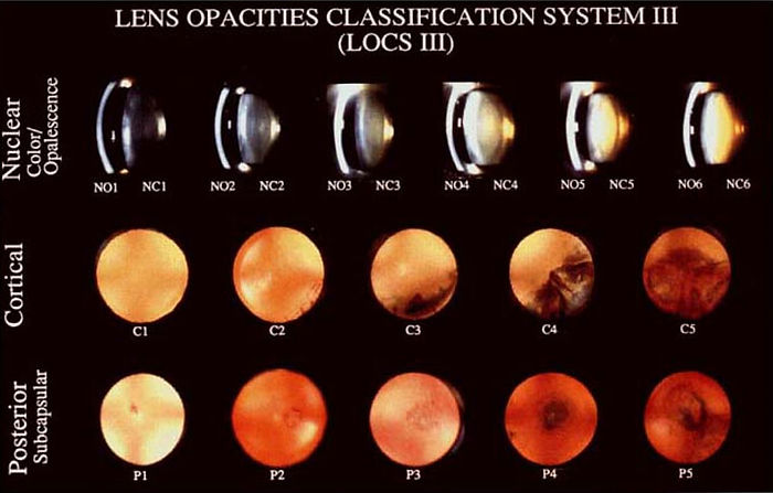 LENS_OPACITIES_CLASSIFICATION_SYSTEM_III