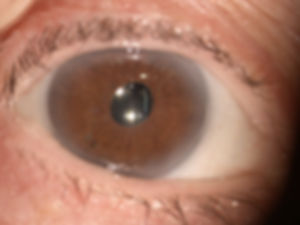 _ATLAS_4_5_post_cataract_iris_fixation_P
