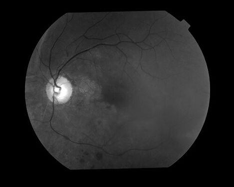 eyemds_Behcet_Retina_Clinic_5.jpg