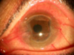 Cornea_non_infectious_keratitis_14.jpg