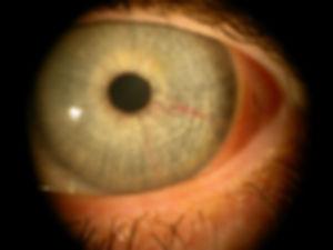 Retina_Cataract_Surgery_ATLAS_5_prominan